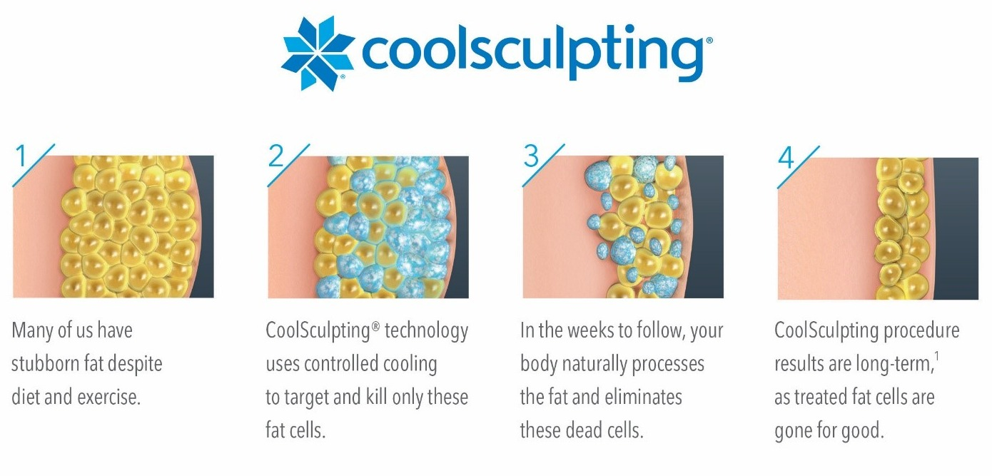 October Newsletter - 3 Ways CoolSculpting Just Got Better and Your Eyes CAN Lie img 5